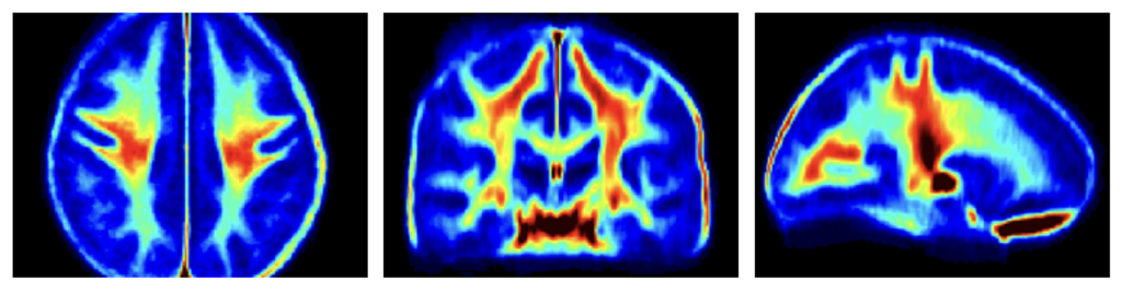MRI water imaging