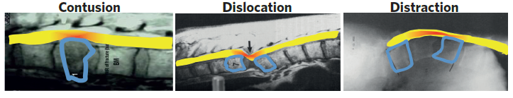 Types of traumatic SCI (from left to right): Contusion: when there is bruising of the spinal cord Dislocation: when there is a disarrangement in the normal relationships of the vertebrae bone Distraction: when overlapping vertebrae bones of the spinal column have been pulled apart