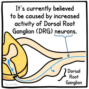 It's currently believed to be caused by increased activity of Dorsal Root Ganglion (DRG) neurons.