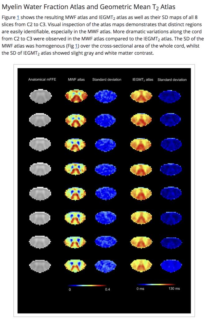 image of the myelin water atlas